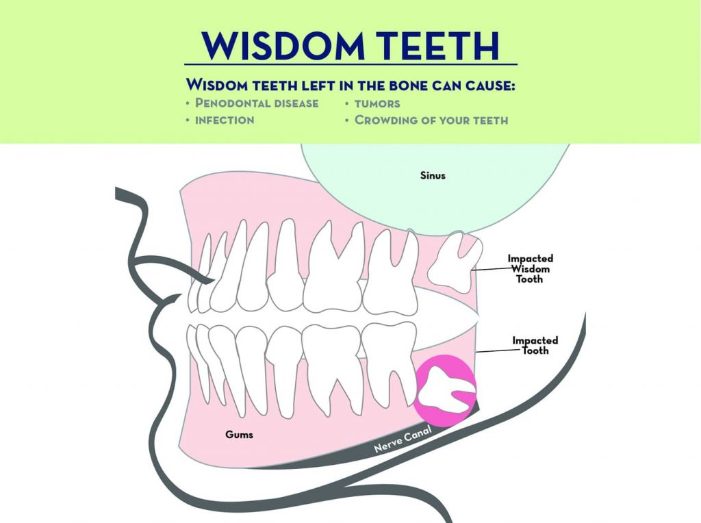 Wisdom Teeth Extractions | Sierra Oral & Facial Surgery
