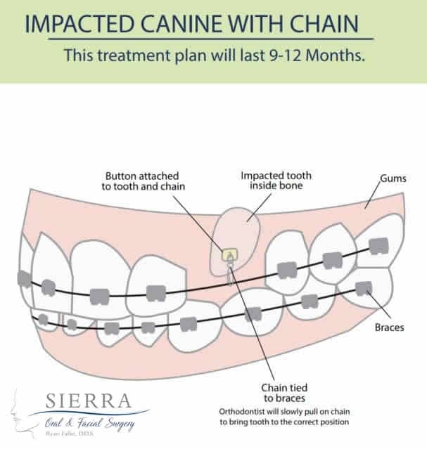 sierra-img-impacted-canine